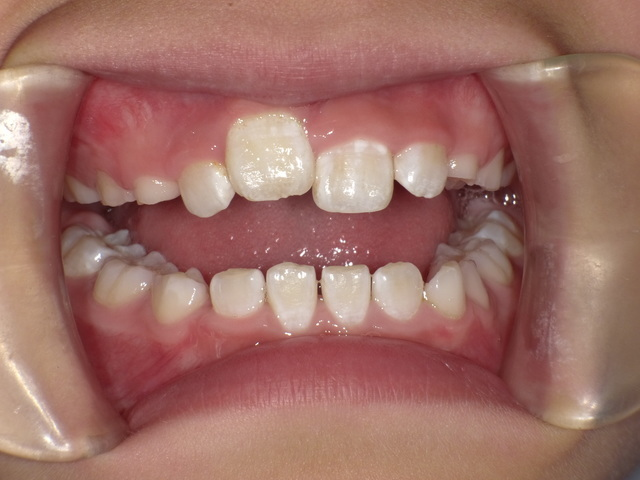 て 永久歯 こない 生え