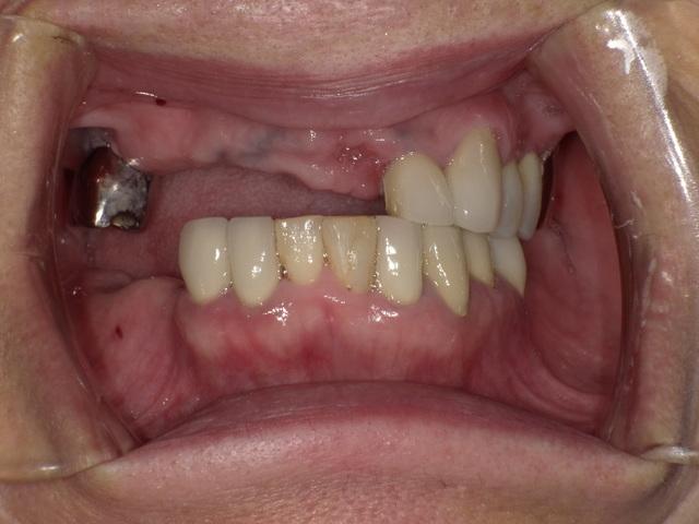 入れ歯 値段 部分 奥歯 2 本