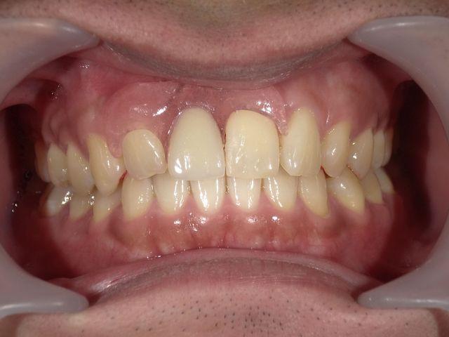 2 部分 本 奥歯 入れ歯
