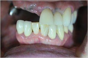 入れ歯 奥歯 部分 45歳・・・部分入れ歯
