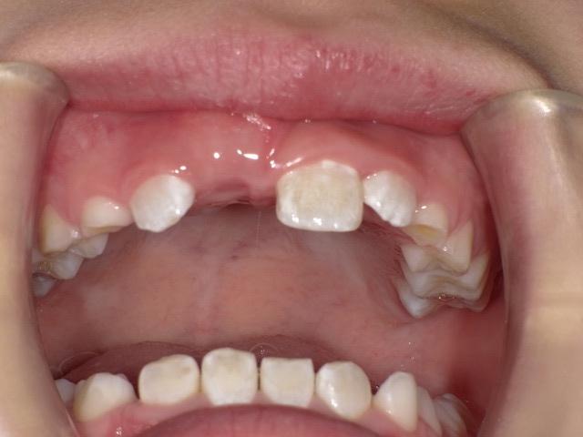 こない て 永久歯 生え